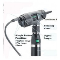 Welch Allyn Digital MacroView Otoscope #23920
